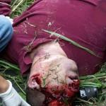 fatal injury